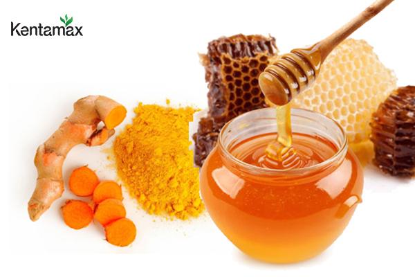 Kết hợp nghệ - mật ong để trị đau dạ dày